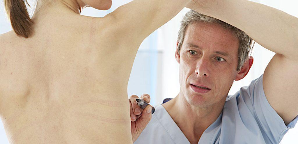 Mamoplastia redutora e Mastopexia